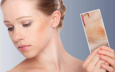 Microneedling for Acne Scar Treatment